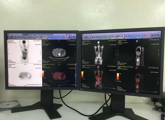 Hệ thống máy PET/CT giúp chẩn đoán, điều trị hiệu quả ung thư - 2