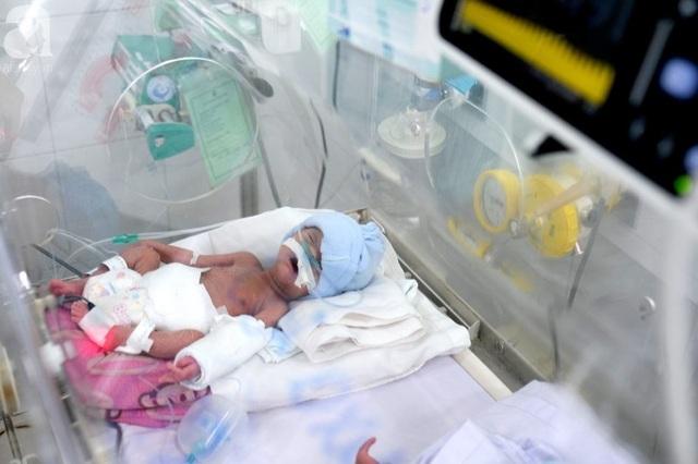 Người mẹ ung thư chịu bệnh hành hạ nhường sự sống cho con - 1