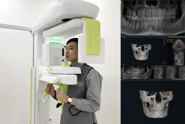 Nha khoa Lạc Việt Intech – Trung tâm trồng răng implant công nghệ cao - 2