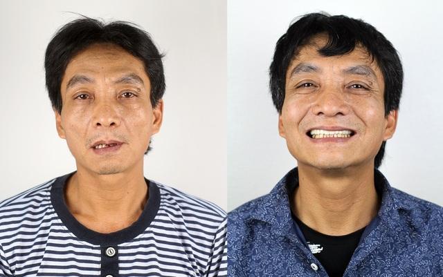 Nha khoa Lạc Việt Intech – Trung tâm trồng răng implant công nghệ cao - 5