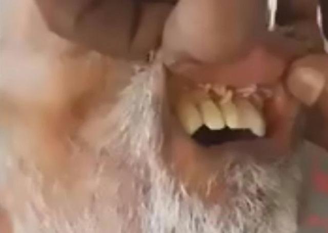 Giòi nhung nhúc trong miệng bệnh nhân đột quỵ - 1