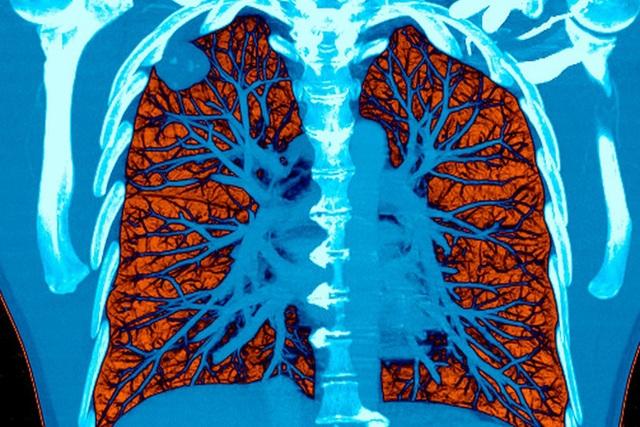 Bị ung thư phổi đừng dễ dàng buông tay: Hãy bắt đầu với việc ăn uống để kéo dài sự sống - 1