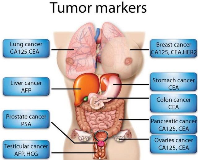 Dấu ấn ung thư là gì? - 1
