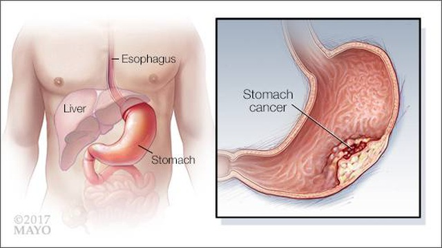 Những dấu hiệu sớm cảnh báo ung thư dạ dày - 1