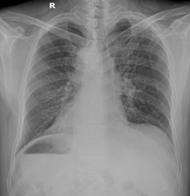 Hiếm gặp: Bệnh nhân có trái tim nằm bên phải bị nhồi máu cấp - 1