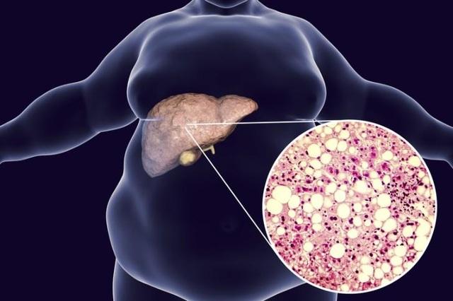 Tìm được cách chẩn đoán sớm ung thư gan và xơ gan - 1