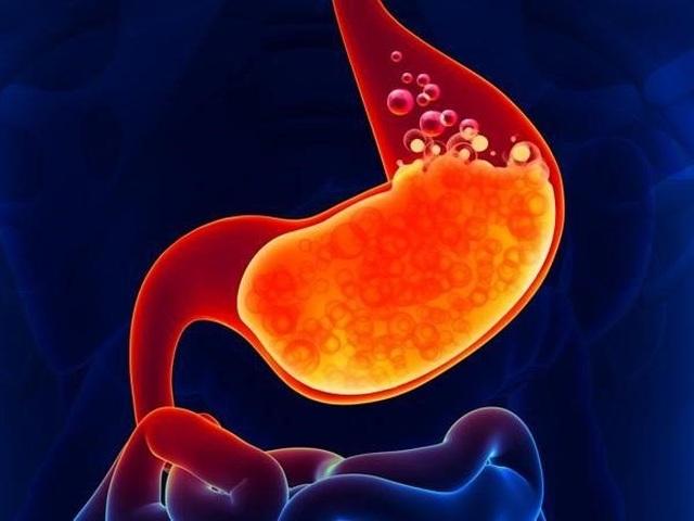 Dấu hiệu 2 hơn, 2 đau cảnh báo ung thư dạ dày đang phát triển - 2