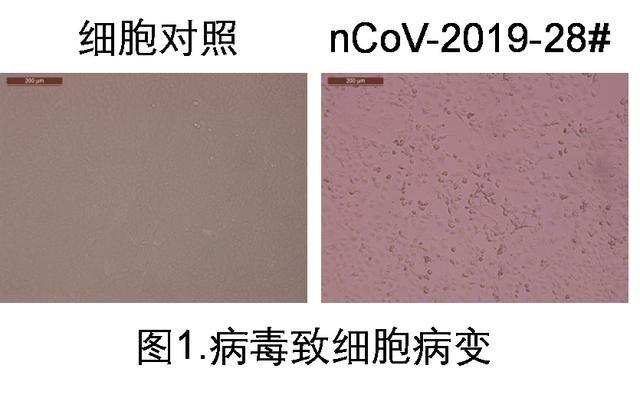 Trung Quốc phân lập được Covid-19 trong nước tiểu người bệnh - 1