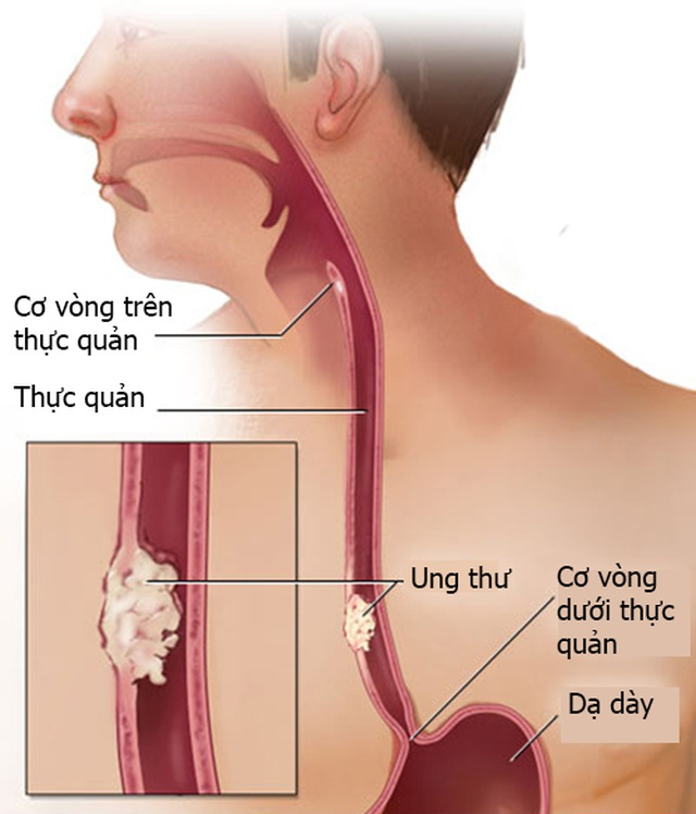 Các giai đoạn của ung thư thanh quản - 1
