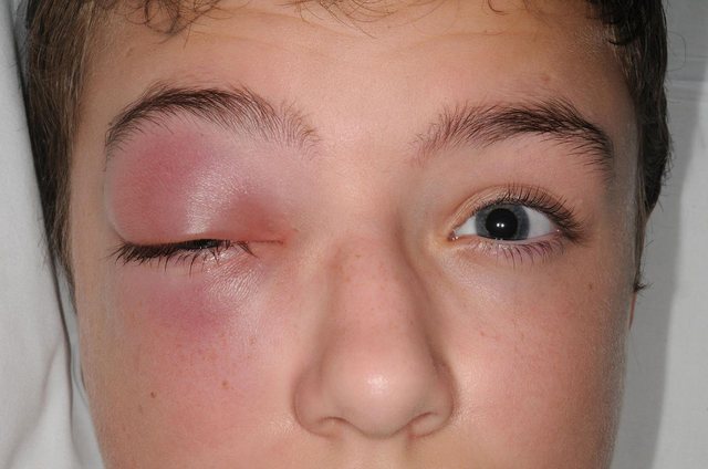 LikiGOLD: Hỗ trợ cải thiện triệu chứng viêm xoang, viêm mũi dị ứng - 1