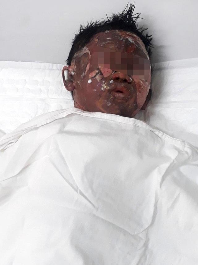 Bé trai bị dì ruột tẩm xăng thiêu sống bỏng 50% cơ thể - 1