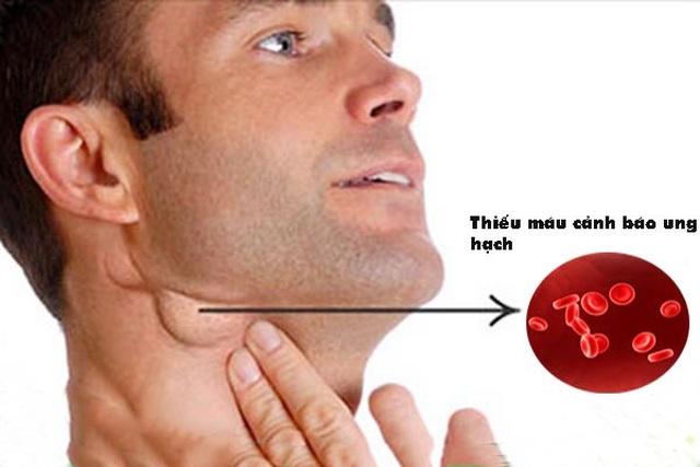 Dấu hiệu cảnh báo ung thư hạch bạch huyết - 1