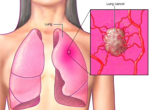 Bệnh nhân ung thư phổi sống được bao lâu? - 1
