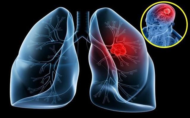 Ung thư phổi: Nguyên nhân, triệu chứng của bệnh - 1