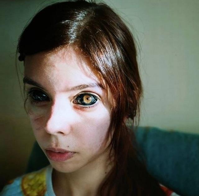 Xăm đen lòng mắt, người mẫu 25 tuổi nhận tin dữ sẽ bị mù hoàn toàn - 1