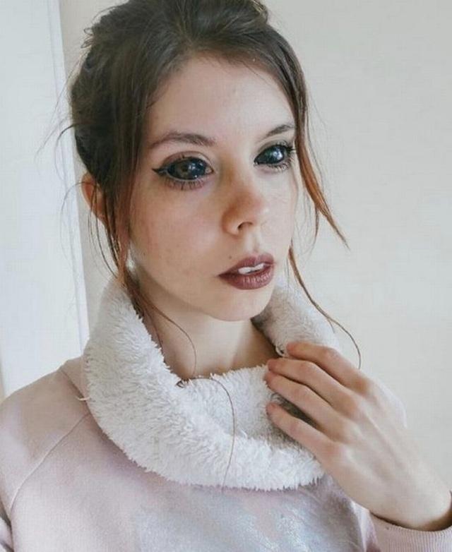 Xăm đen lòng mắt, người mẫu 25 tuổi nhận tin dữ sẽ bị mù hoàn toàn - 6