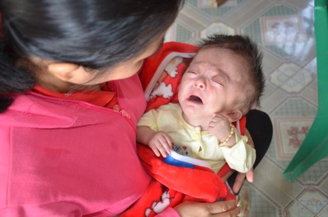 Tiếng khóc xé lòng của bé 7 tháng tuổi khắc khoải chờ bàn tay nhân ái - 4