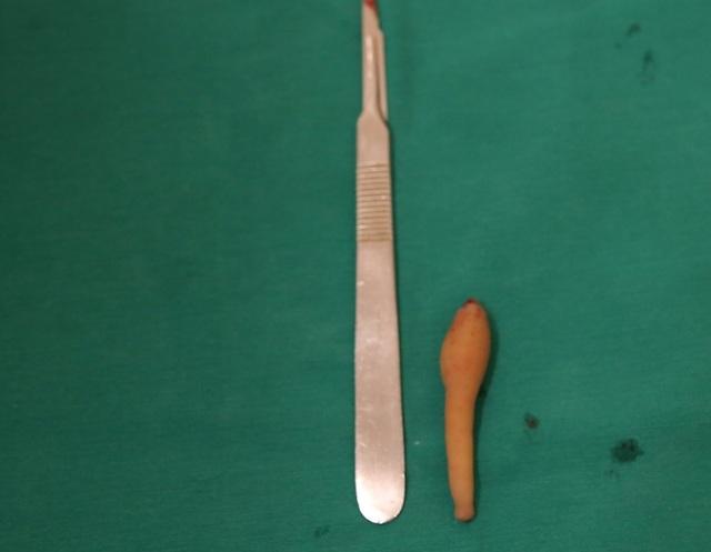 Kỳ lạ bé gái 5 tháng tuổi có đuôi vùng xương cụt dài gần 10cm - 2