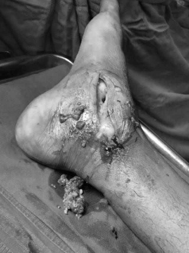 Người đàn ông suýt phải cưa bỏ chân hoại tử vì đắp lá chữa đau nhức - 1