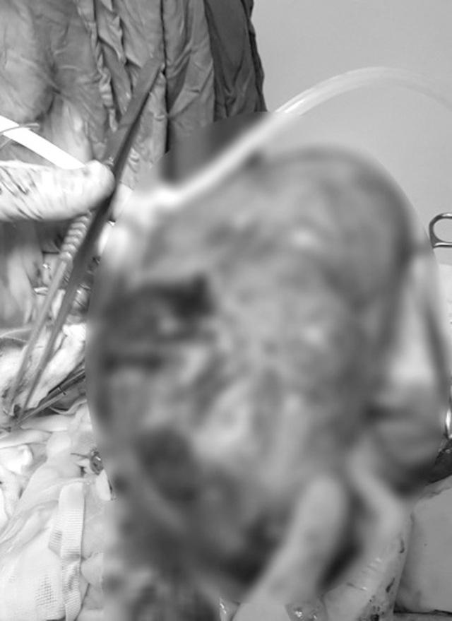 """Bác sĩ """"choáng"""" với khối ung thư nặng 3 kg trong bụng nữ bệnh nhân - 1"""