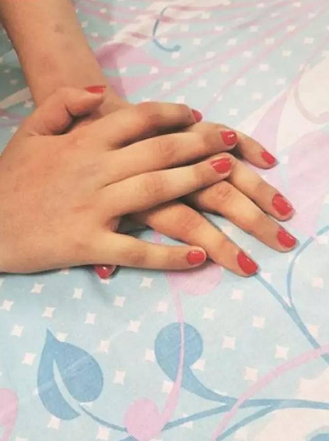 Đôi tay da đen chuyển màu sau khi cấy ghép cho người phụ nữ da sáng - 3