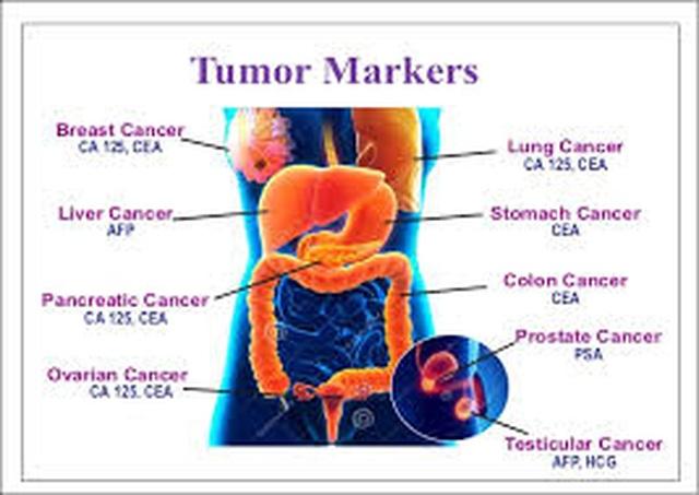 7 dấu ấn ung thư thường sử dụng - 1
