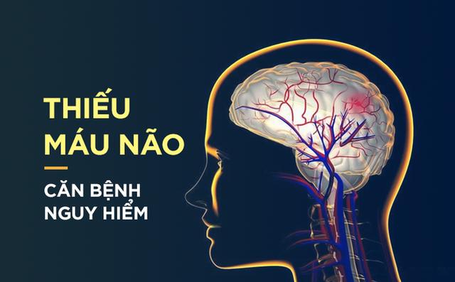 Giải pháp nào tốt cho người thiếu máu lên não? - 1