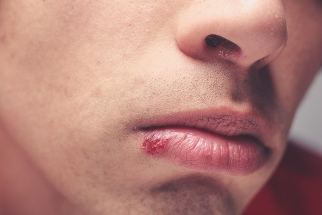 14 dấu hiệu thầm lặng cho biết bạn đang stress - 10