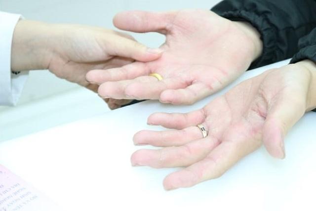 Nhiều người tổn thương da vì thường xuyên sát khuẩn phòng Covid-19 - 2