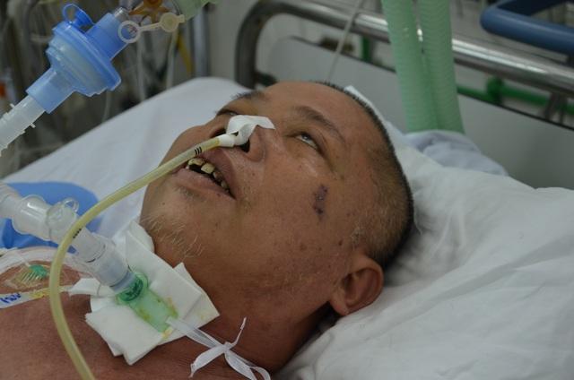 Tính mạng mong manh của người đàn ông bị ô tô đâm gãy 5 xương sườn - 5