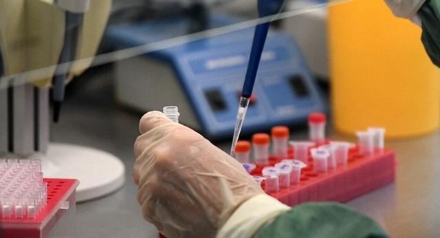 Nga nghiên cứu sử dụng Plasma lạnh chống lại sự lây lan Covid-19 - 1