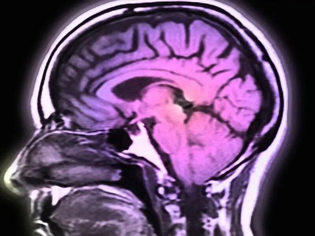 Covid-19 có thể gây hại cho não - 1
