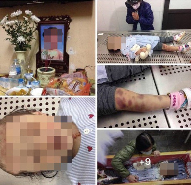 Màn kịch yêu thương của mẹ đẻ và bố dượng bạo hành bé gái 3 tuổi đến tử vong - 5
