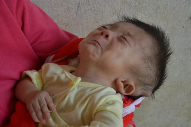 Em bé khắc khoải chờ bàn tay nhân ái được bạn đọc giúp đỡ 335 triệu đồng - 1