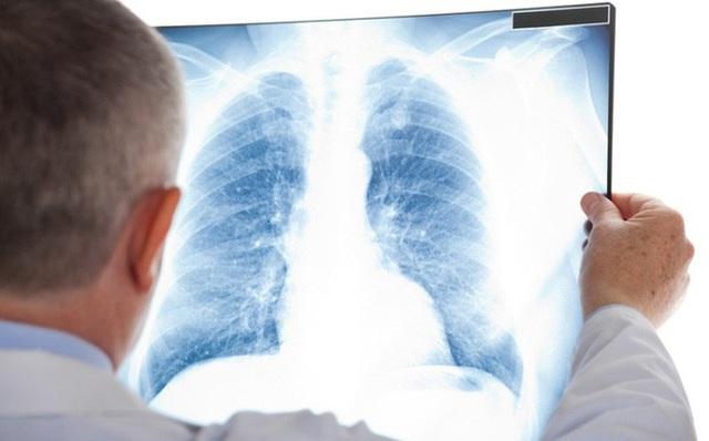 Ngoài thuốc lá, đây cũng là những thủ phạm gây ung thư phổi - 3