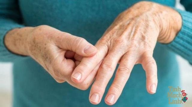 Tê bì chân tay theo y học cổ truyền - 1