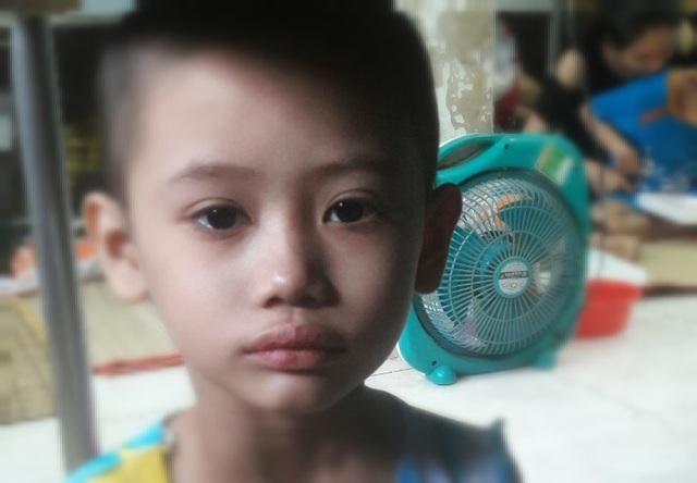 Ám ảnh nỗi buồn trên khuôn mặt của bé gái 6 tuổi bị bệnh ung thư hành hạ - 1