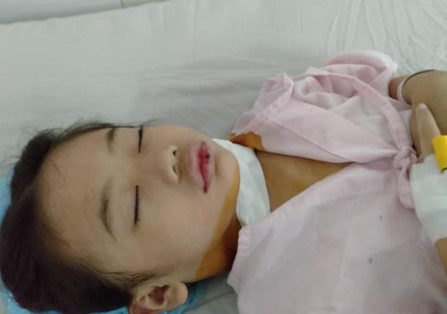 Ám ảnh nỗi buồn trên khuôn mặt của bé gái 6 tuổi bị bệnh ung thư hành hạ - 3
