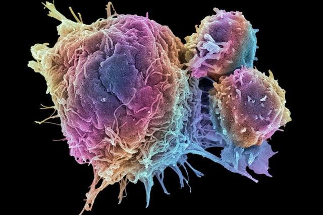 Giải pháp mới trong ứng dụng sóng siêu âm để tiêu diệt tế bào ung thư - 2