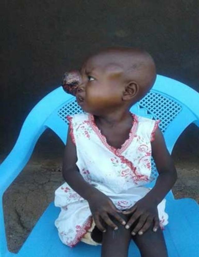 Em bé 2 tuổi mang khối u khổng lồ trên mắt vì không có tiền chữa ung thư - 1