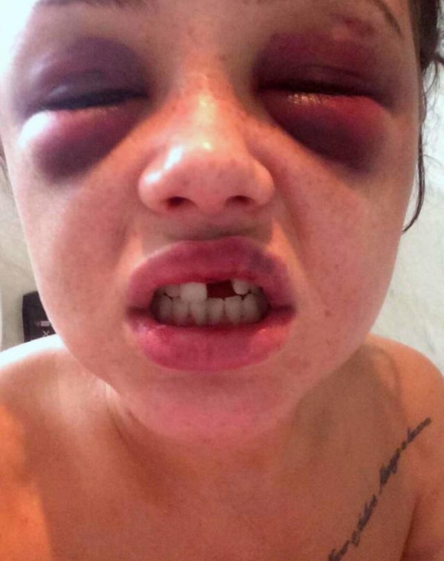 Võ sư tấn công bạn gái điên cuồng vì bị phát hiện quá khứ bạo lực - 2