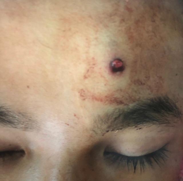 Đi săn đêm bằng súng tự chế, nam thanh niên 16 tuổi bị đạn bắn xuyên não - 1
