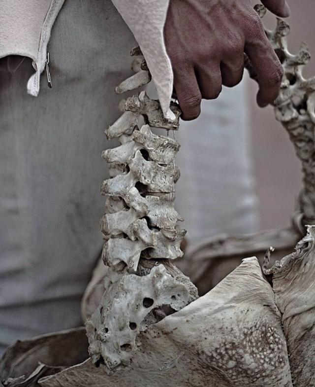 Bùng nổ tranh cãi quanh chiếc túi thời trang làm từ xương sống con người - 3