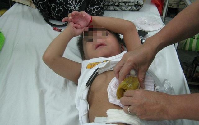 Sợ dịch Covid-19, liên tiếp 2 bệnh nhi suýt chết vì vỡ ruột thừa - 2