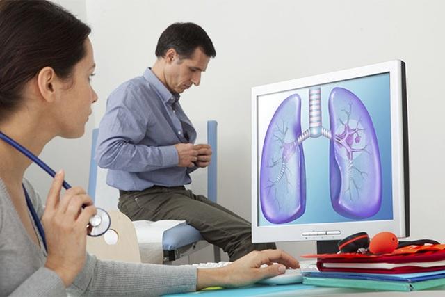 Giọng nói thay đổi là dấu hiệu cảnh báo ung thư phổi  - 1