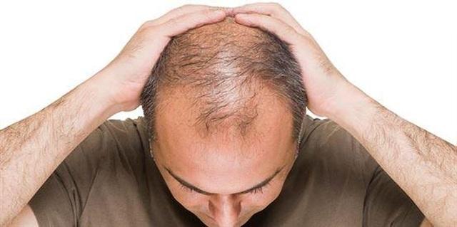 Viên sủi mọc tóc, hạn chế tóc bạc Long Hair - Bí quyết làm đẹp cho mái tóc của bạn - 1