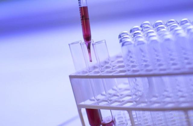 Roche phát triển xét nghiệm huyết thanh học mới nhằm phát hiện các kháng thể Covid-19 - 1