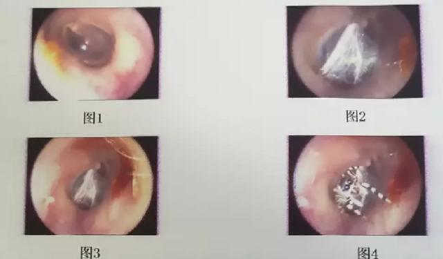 Nhện sống trong ống tai người phụ nữ Trung Quốc - 2