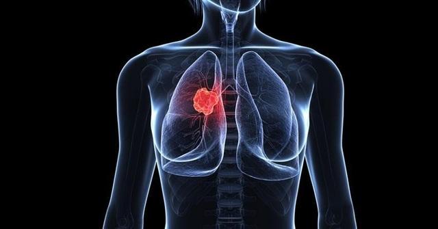 Tumolung - Sản phẩm mới giúp giảm nhẹ tác dụng phụ của hóa xạ trị - 1