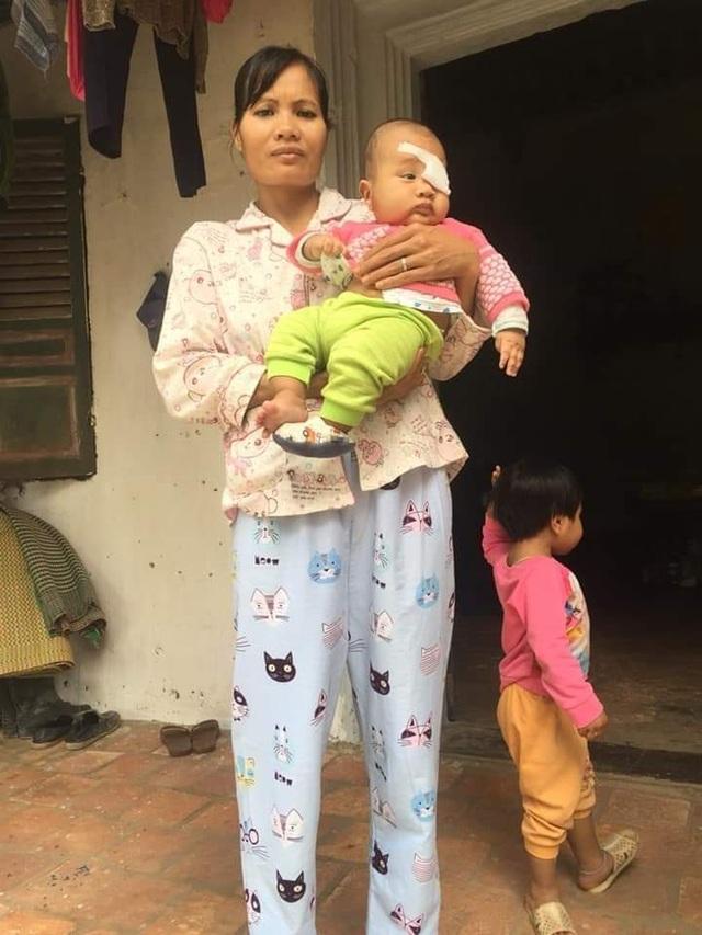 Tiếng khóc xé lòng của bé 8 tháng tuổi bị bệnh tật bủa vây - 3